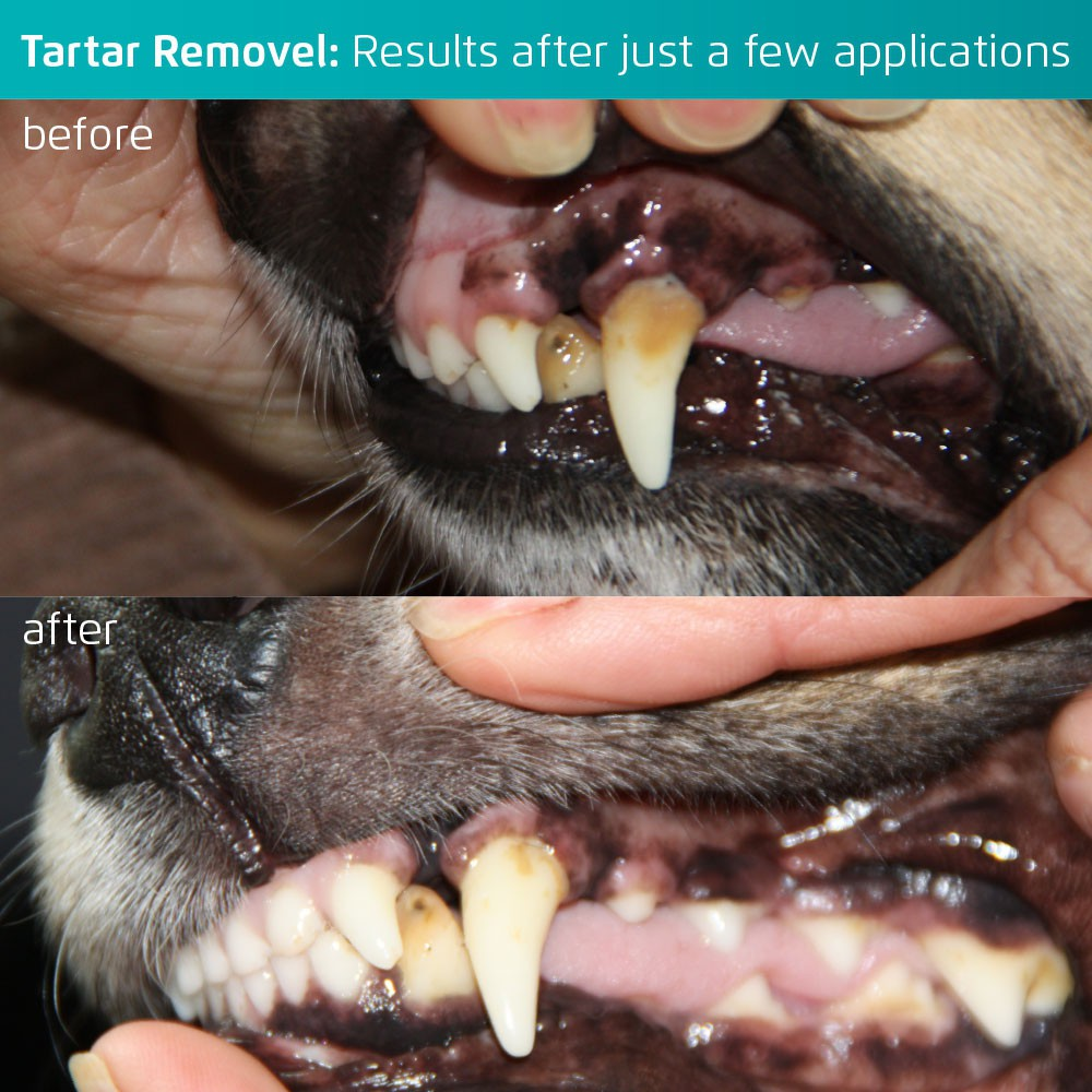 See how the toothbrush removes tartar and inflammation (before and after)