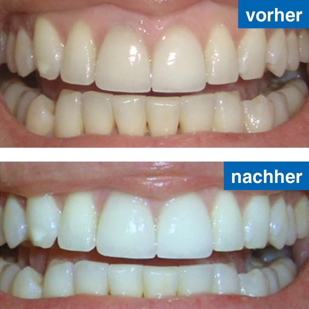 Zahnaufhellung Vorher/nachher-Bild